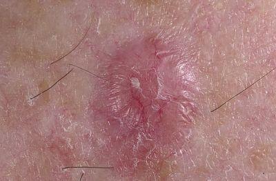 Рак кожи базалиома это смертельно - 12